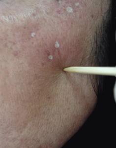 TCA CROSS peel for Acne Scarring