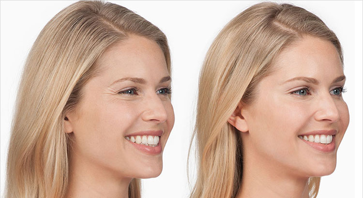 Botox For Crows Feet Panorama Dermatology Clinic