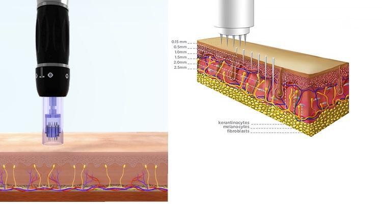 Skin microneedling with Dermapen